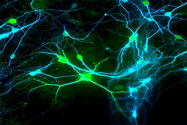 pronadji svoju neuronsku vezu.png